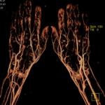 CT-Angiografie-Haende