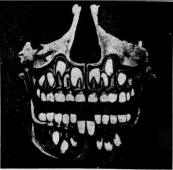 X-ray_of_human_skull_with_juvenile_and_permanent_teeth_(1910)